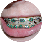 Orthdontics Dental Service Houston, TX