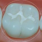 Sealants Dental Service Houston, TX
