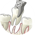 Extractions Dental Service Houston, TX