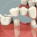 Crowns and Bridges Dental Service Houston, TX