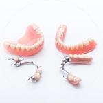 Removable Dentures Dental Service Houston, TX