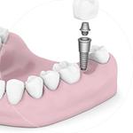 Dental Implants Dental Service Houston, TX