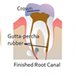Root Canal Dental Service Houston, TX