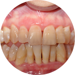 Scaling and Root Planing Dental Service Houston, TX