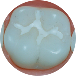 Sealants Dental Service Houston, TX