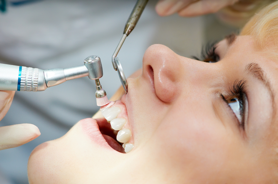 Routine Cleaning Dental Service Houston, TX